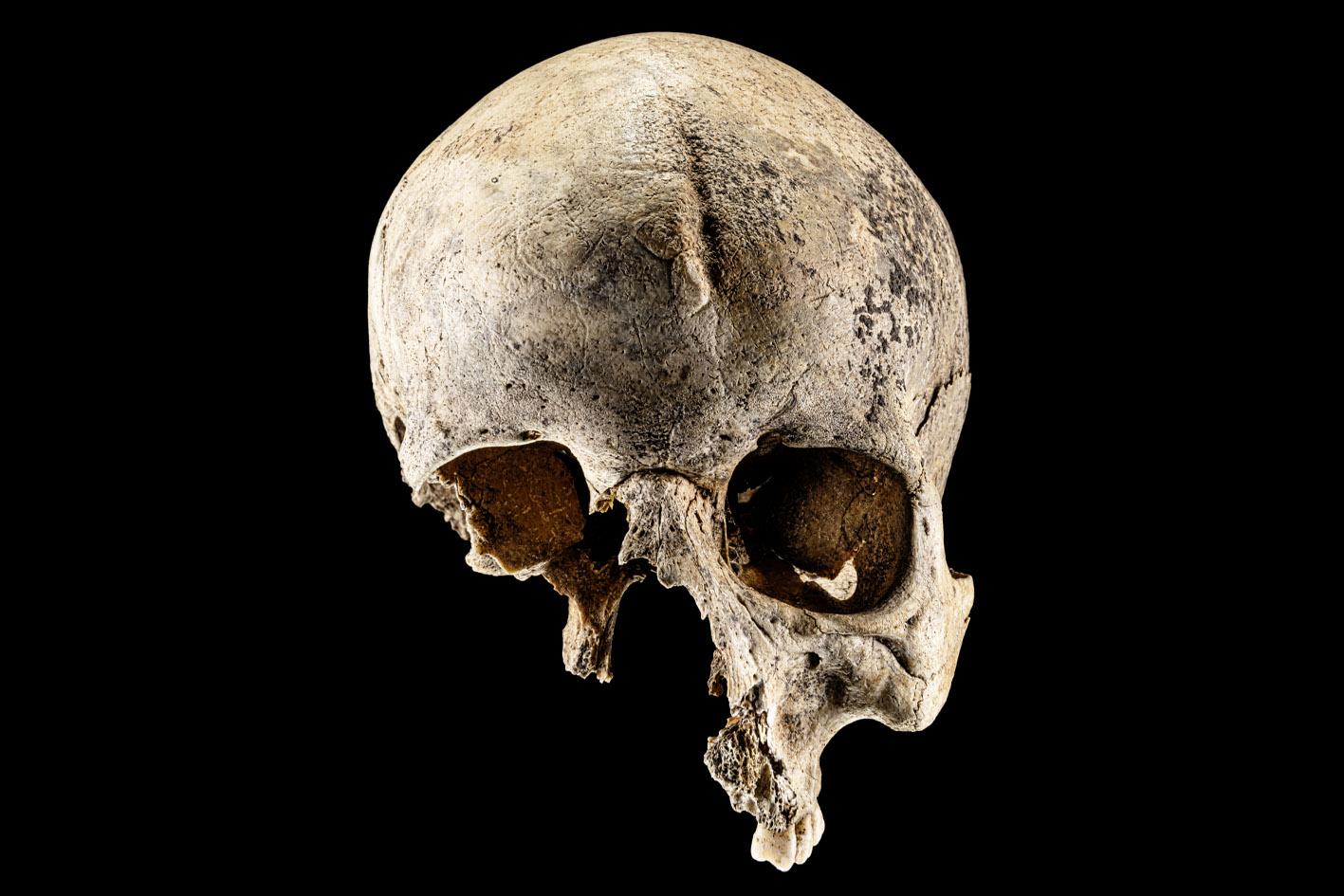 Foto: Menschlicher Schädel, dem die untere Gesichtspartie fehlt