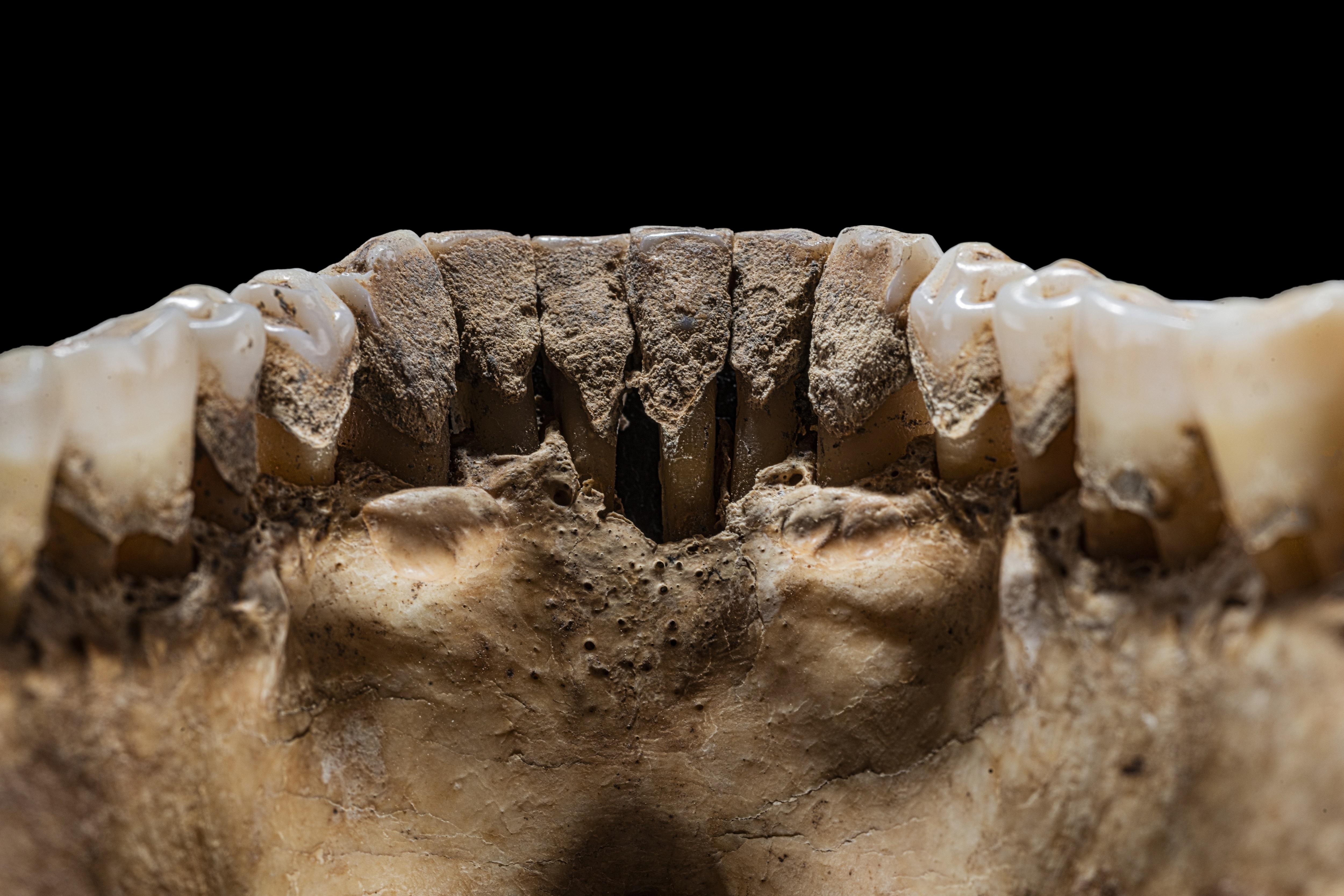 Skelettierter Unterkiefer mit Zähnen